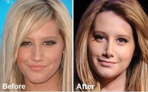 ashley_tisdale_nose_job_before_and_after